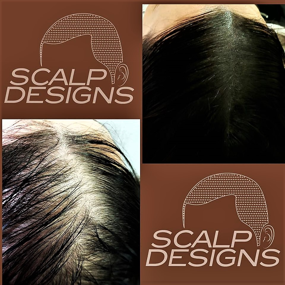 smp long hair thinning fill in