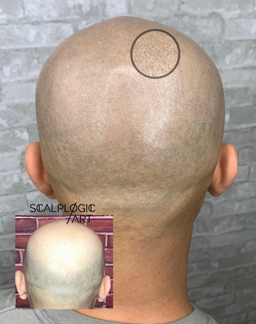 The detail required scalp micropigmentation smp