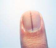 normal black line under fingernail