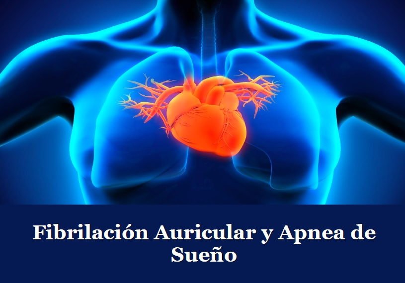 Fibrilación auricular y apnea del sueño