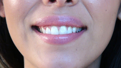 Whiter teeth in 20 mins!