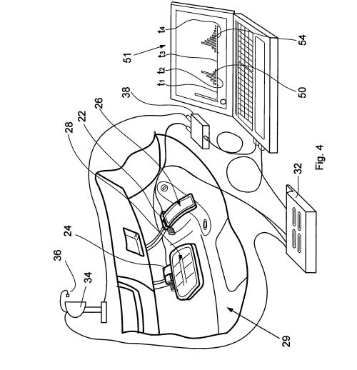 small resolution of vertex magneto wiring diagram plug