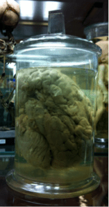 The brain Broca studied at Musée Dupuytren [image source: google images]