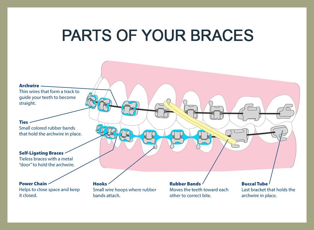 rubber bands braces diagram 1980 jeep cj5 wiring schulten orthodontics