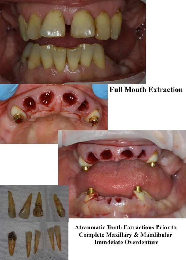 What Does A Tooth Blood Clot Look Like : tooth, blood, Surgery, Wisdom, Tooth, Extraction
