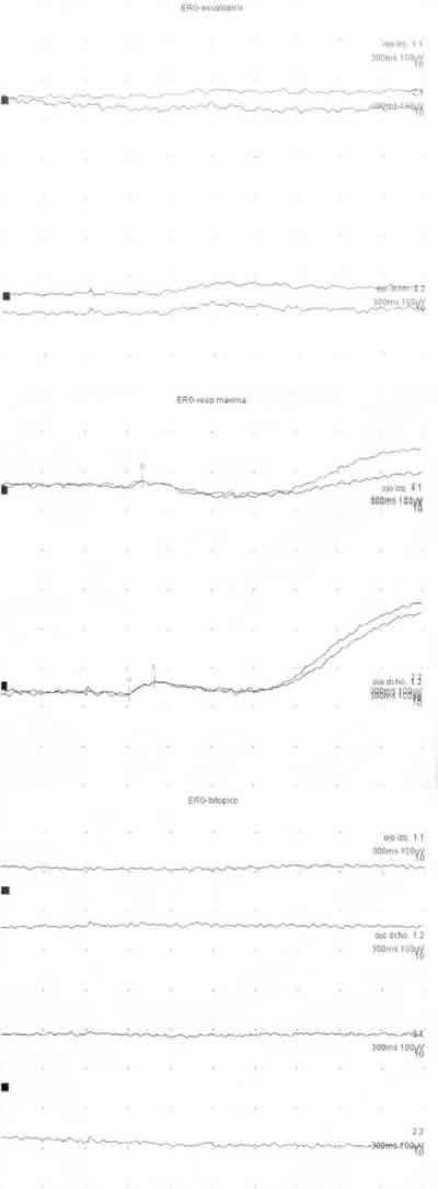 Coroideremia: seguimiento durante un año con polarimetría