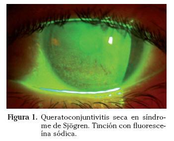 Manifestaciones corneales en las enfermedades sistmicas