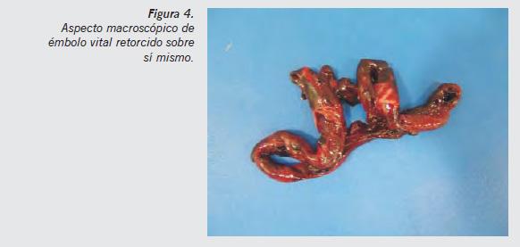 Abordaje del tromboembolismo pulmonar en la sala de autopsias