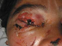Lesiones oculares y perioculares asociadas a los