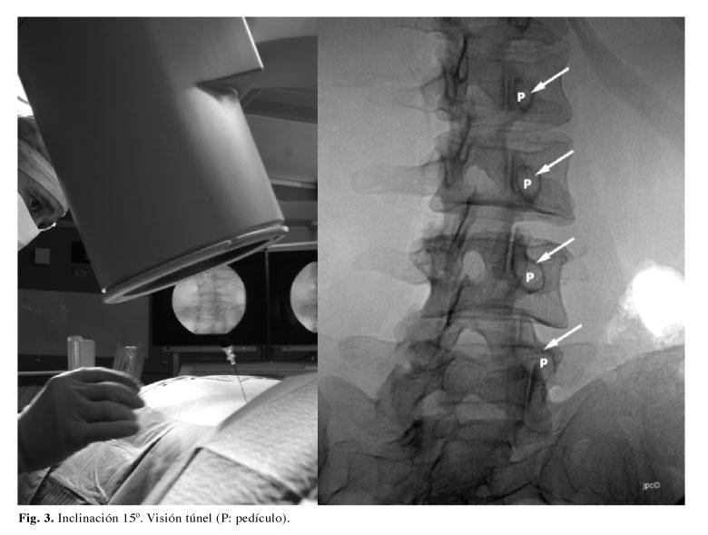 Radiofrecuencia de facetas lumbares y cervicales