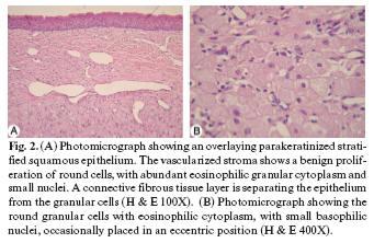 Congenital Granular Cell Tumor Congenital Epulis A