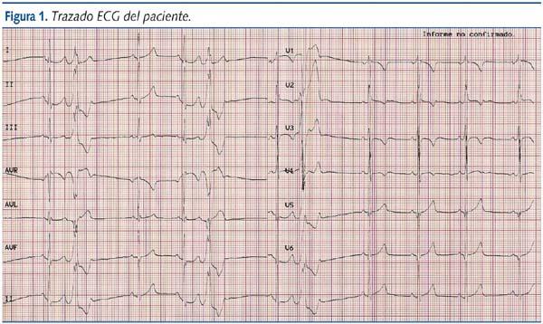 Casos clnicos en Cardiologa n 6 nio de diez aos