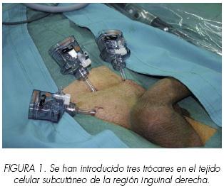 Ciruga endoscpica subcutnea en urologa