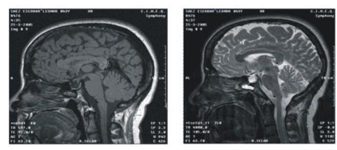 Reflection on imaging diagnosis of sellar masses
