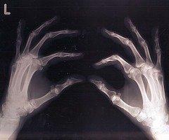 What Information is Found in Bones We Leave Behind?