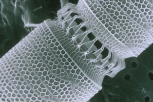 Nanotechnology by CSIRO [CC BY 3.0], via Wikimedia Commons