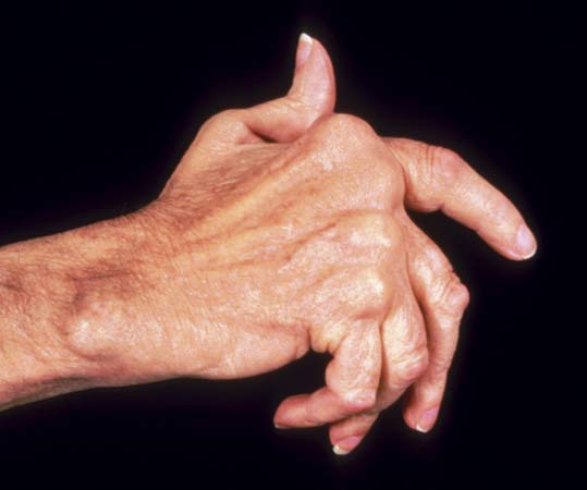 New research could pave the way to safer treatments for arthritis