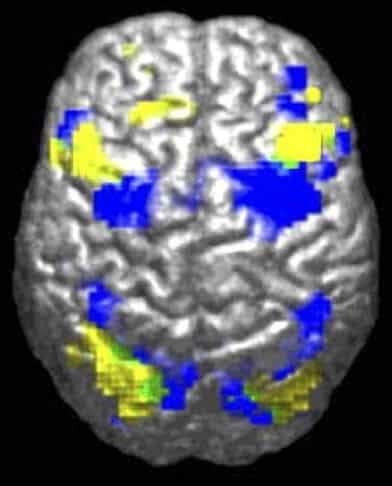 Autism researchers make exciting strides