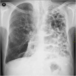 480px-Medical_X-Ray_imaging_WFH07_nevit