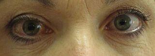 Is glaucoma a brain disease?