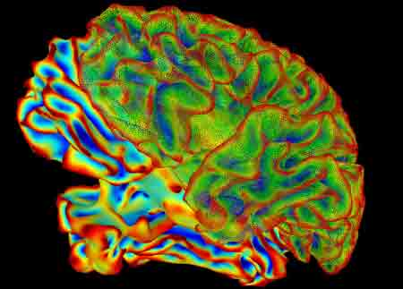 Finally mapped: The brain region that distinguishes bits from bounty