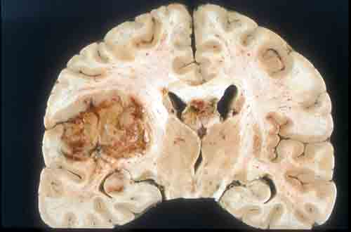 New target for glioblastoma multiforme (GBM) brain cancer treatment