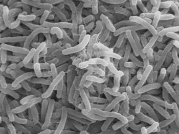 Bacterial Gut Biome May Guide Colon Cancer Progression