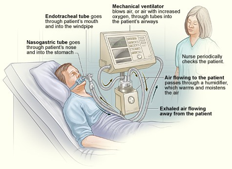 Finding: How ICU ventilation may trigger mental decline