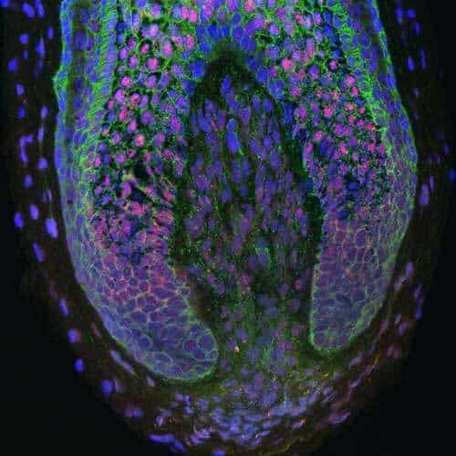 Hair Regeneration Method is First to Induce New Human Hair Growth
