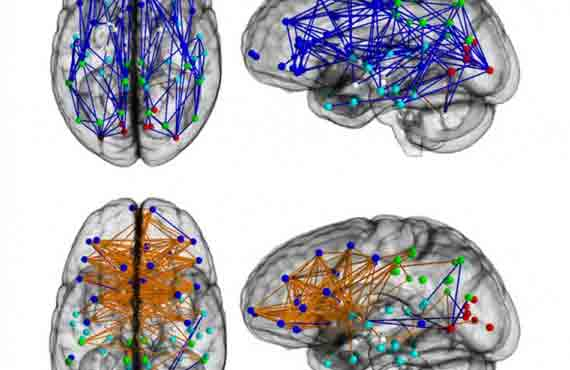 Brain Connectivity Study Reveals Striking Differences Between Men and Women