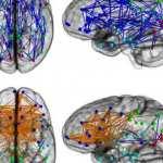 brain-connectivity