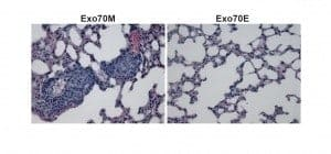 One Protein, Two Personalities: New Mechanism of Cancer Spread