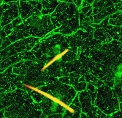 Serotonin Perpetuates Chronic Pain Signals In Local Nerves