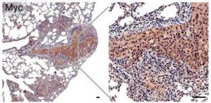 powerful new animal model for metastatic prostate cancer