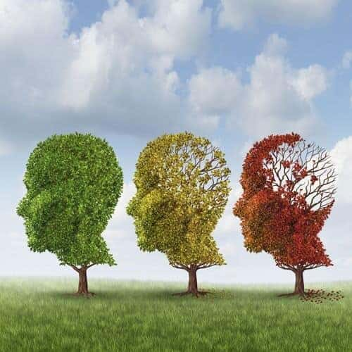 Alzheimer's much larger cause of death than reported