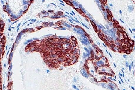 Low testosterone may indicate worsening of prostate disease