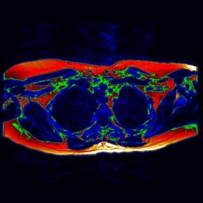 Milestone for brown fat research with new MRI scan