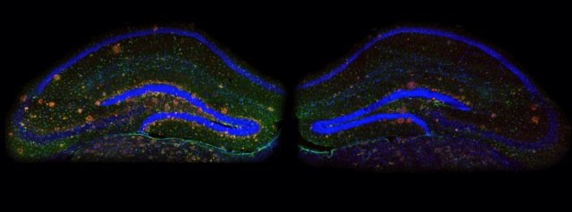 Neuroscientists reverse Alzheimer's symptoms in mice