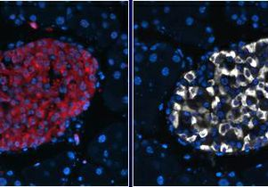 New insight on pancreatic protein linked with Type 2 diabetes