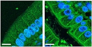 New culprit identified in metabolic syndrome