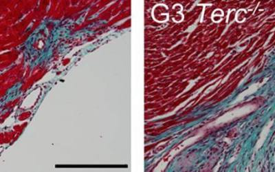 Mouse study links heart regeneration to telomere length