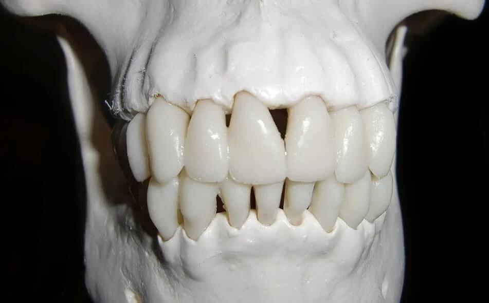 Whitening strips may damage teeth