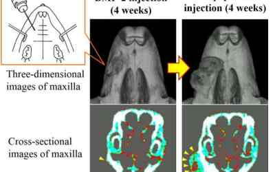 Injected mix of bone-augmenting agents causes new bone growth in mouse jaws
