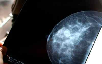Some breast cancer patients with low genetic risk could skip chemotherapy