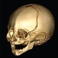 Researchers find combined effects of two genes responsible for premature skull fusion in infants
