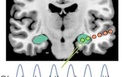 Hippocampus helps fill in the blanks of language