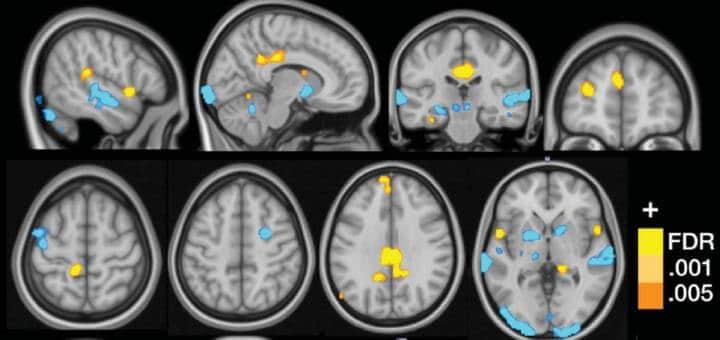 Neural signature for fibromyalgia may aid diagnosis, treatment