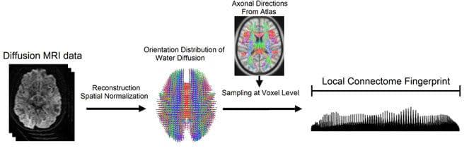 Researchers Develop Way To 'Fingerprint' the Brain