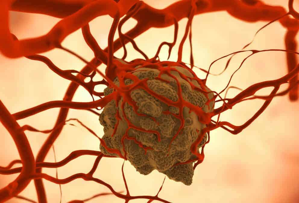 Scientists stimulate immune system, stop cancer growth