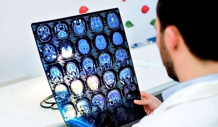 Scientists identify key defect in brain tumor cells